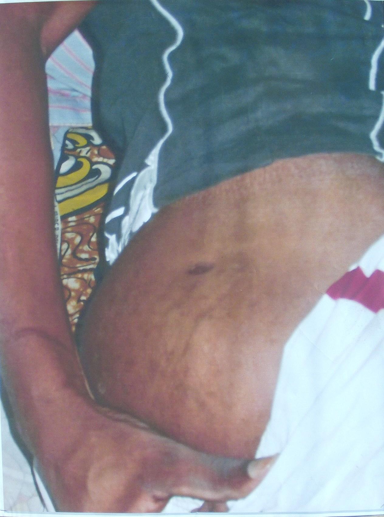 Massamba Fortuné torturé à coups de barres de fer. Il a eu une côte cassée au niveau des côtes flottantes gauche de la cage thoracique  l (Violations des Droits de l'Homme en Afrique et dans le monde)